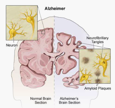 burden of alzheimers disease high and growing Alzheimer's burden to double by 2060, cdc report warns about 16 percent of americans had dementia in 2014 by 2060, the cdc estimates 139 million people will have alzheimer's or a related memory.