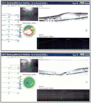 Neovascular Glaucoma And Diabetic Macular Edema In A