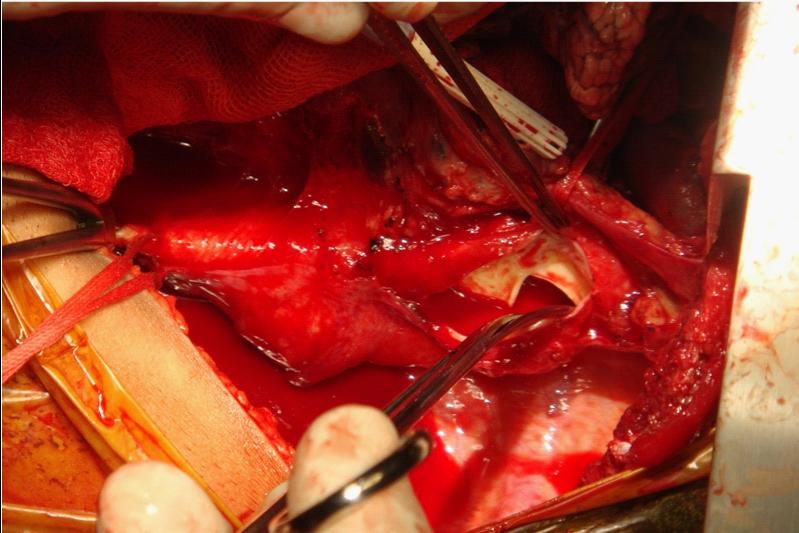 Aortic Aneurysm Surgical Treatment Apollo Hospitals Dhaka