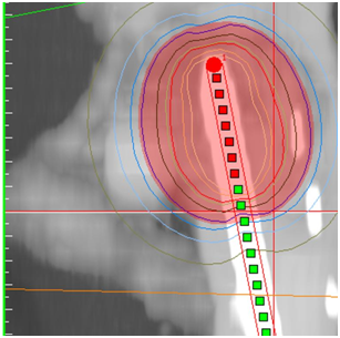 Our Experience Using Hdr Brachytherapy For Cervical Cancer