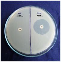 Ciprofloxacin Enrofloxacin