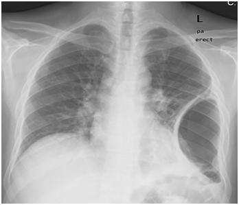 Wegener S Granulomatosis In A Saudi Patient Presenting As