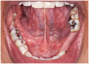 Painless reproducible reversible floor of mouth for Floor of mouth