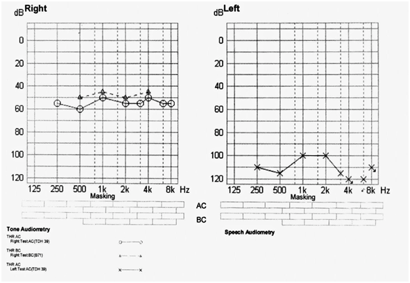 A Pure Tone Audiogram For Students