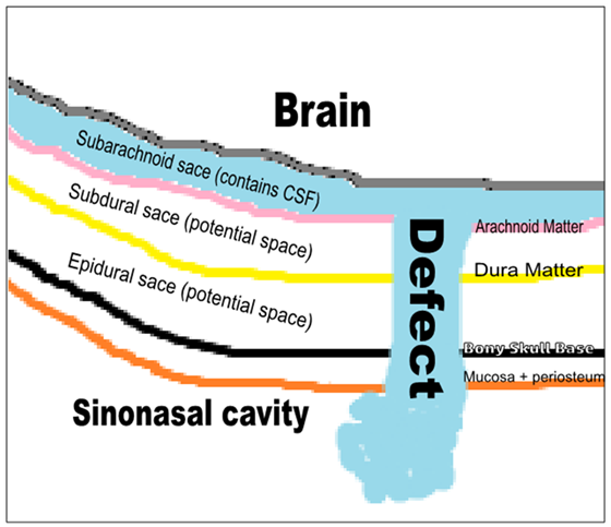 Current Approach To Cerebrospinal Fluid Rhinorrhea