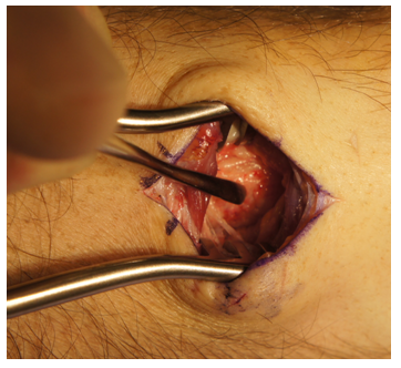 Brodie's Abscess 7 Years after External Fixation of a Displaced Distal Radius Fracture: A Case ...