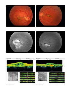 Intravitreal Bevacizumab Injection For Choroidal Neovascularisation