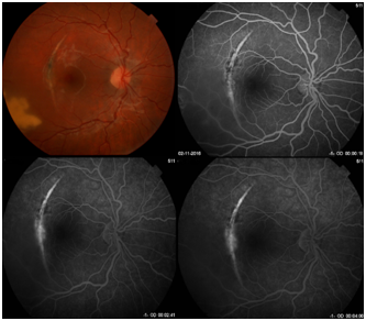 Effect Of Intravitreal Ziv Aflibercept On Choroidal