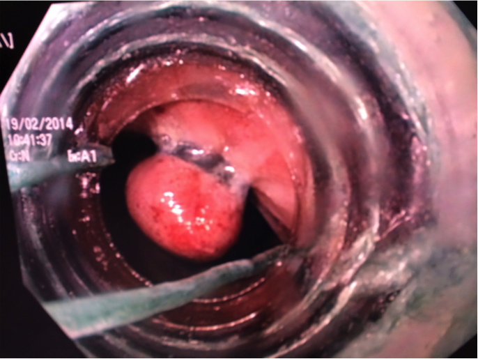 Endoscopic Rubber Band Ligation Of Internal Hemorrhoids