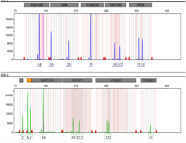 Role of 3-Y markers in Y deleted allele on amelogenin in