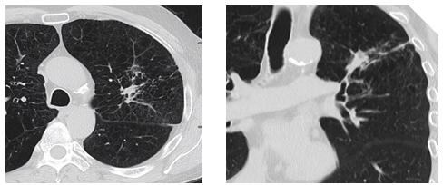 Differentiating radiation changes from local recurrence