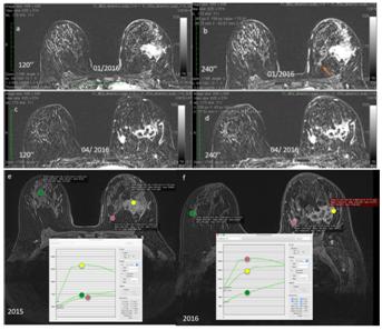 False negative carcinomas on breast magnetic resonance imaging