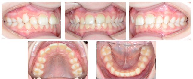 Treatment of Class II Division 1 with Carriere Distalizer