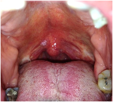 benign wart in mouth