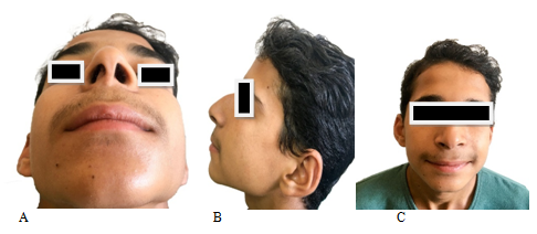 Endonasal endoscopic assisted extracorporeal septoplasty in