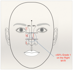 Classification of nasal deviation a short review - MedCrave online