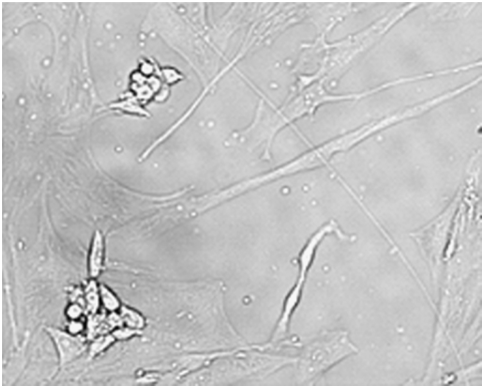 Cell Line Cross Contamination And Accidental Co Culture