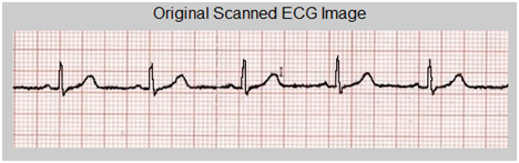 Analysis on conversion process from paper record ECG to