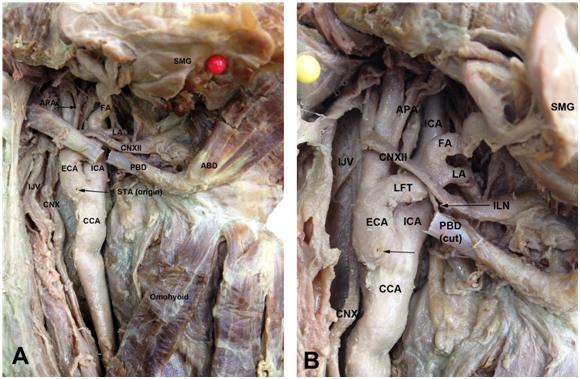 Lateral external carotid artery and linguofacial trunk: a rare ...