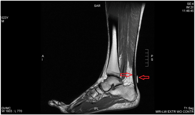 Hydrodissection of an Achilles Tendinopathy on a Professional