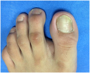 Subungual Osteochondroma: Review of the Literature