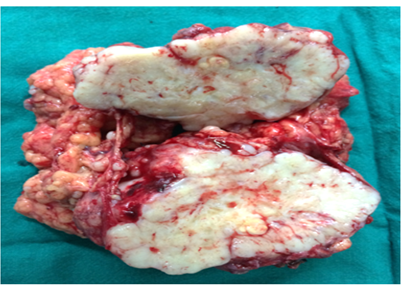 Intra Abdominal Desmoplastic Small Round Cell Tumour Which Mimicked Metastatic Adenocarcinoma Figure